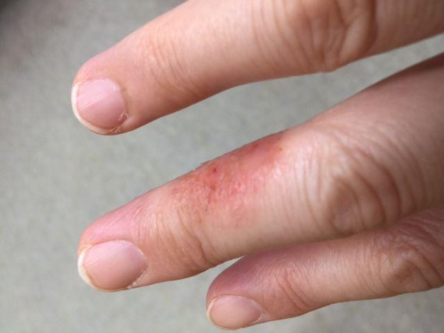 手指の湿疹がバランス調整でよくなるか?